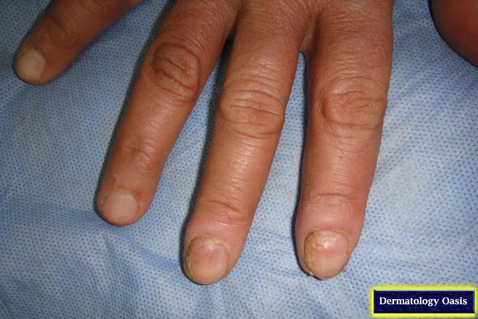 Chronic paronychia | Dermatology Oasis