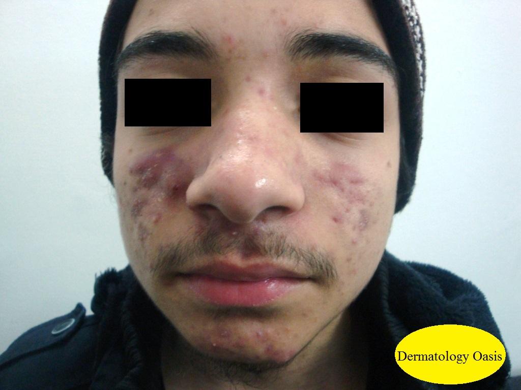Acne nodulocystic
