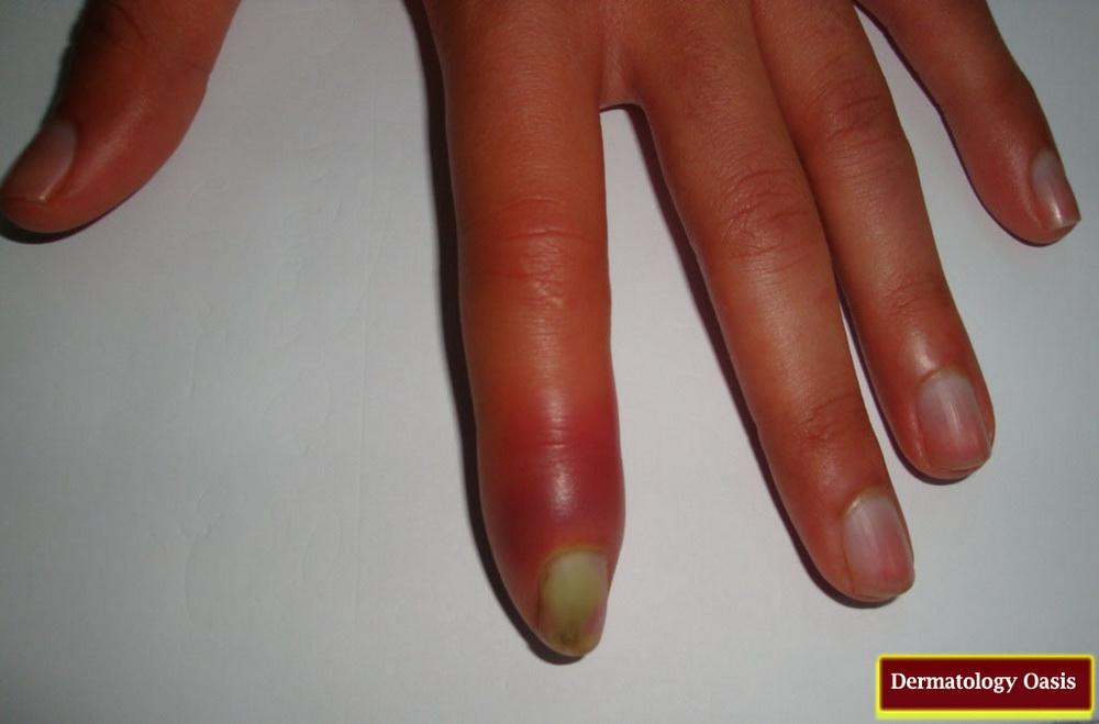 Abscess | Dermatology Oasis