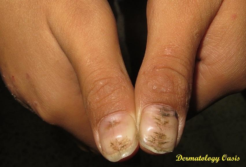 Nail Disorders | Dermatology Oasis