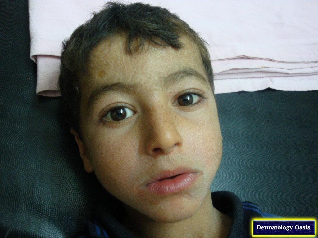 Ichthyosis vulgaris face