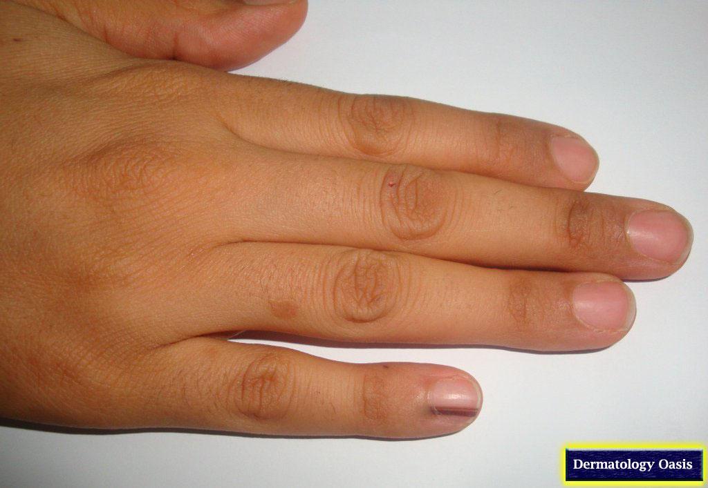Longitudinal melanonychia | Dermatology Oasis