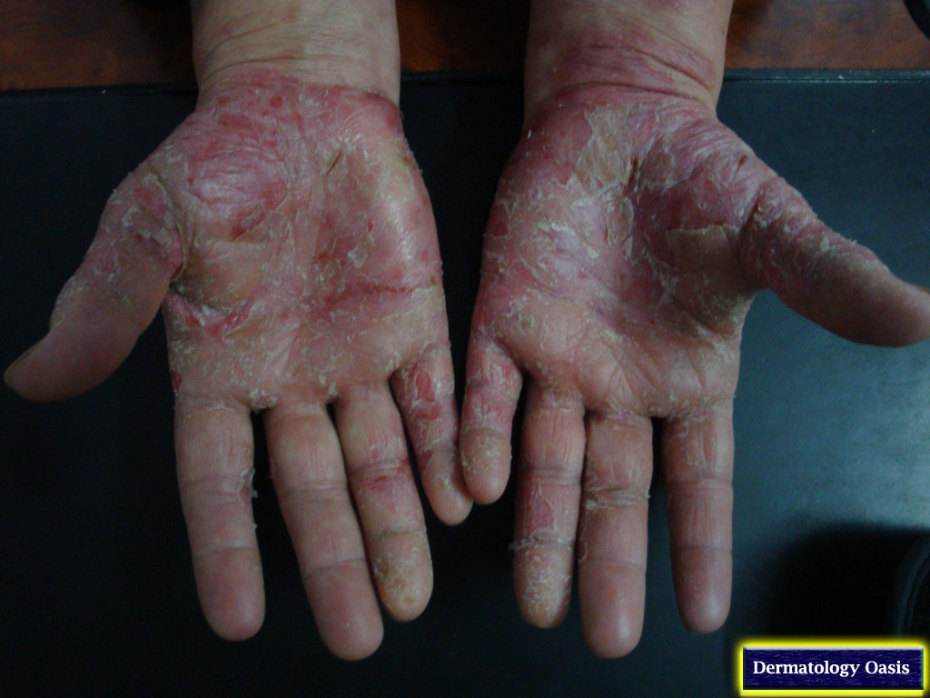 Treating Psoriasis on the Hands or Feet - WebMD