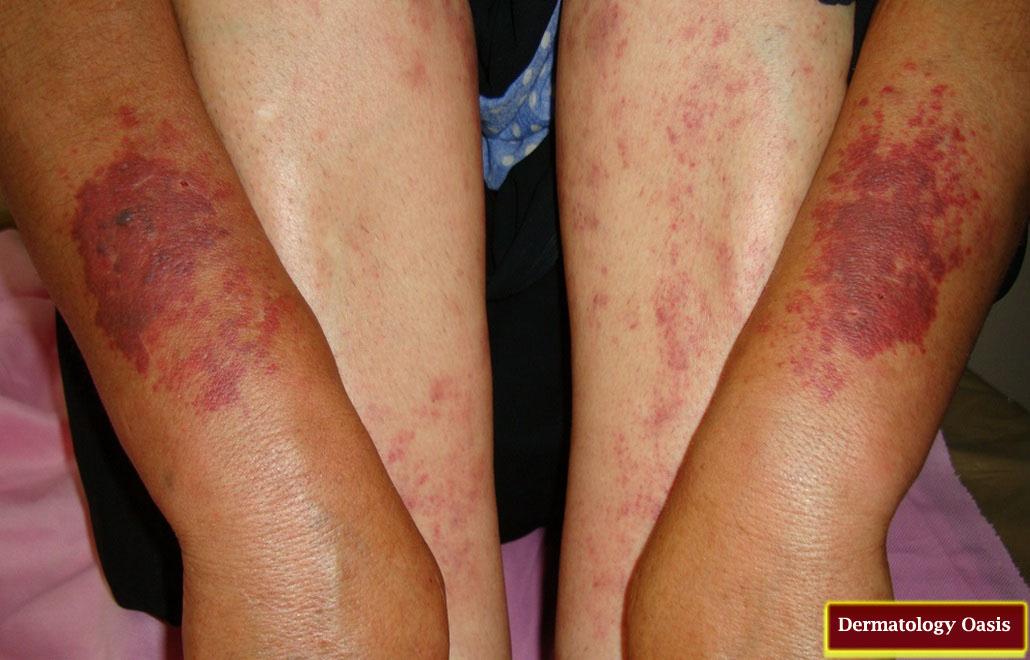 Pigmented purpuric dermatosis - Wikipedia