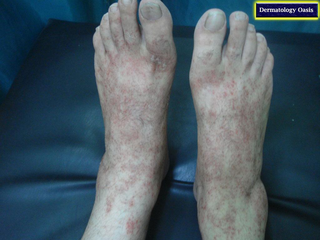 Capillaritis   DermNet New Zealand