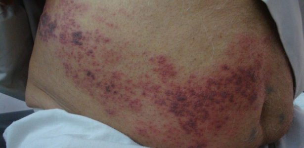 Herpes zoster treatment nejm youtube