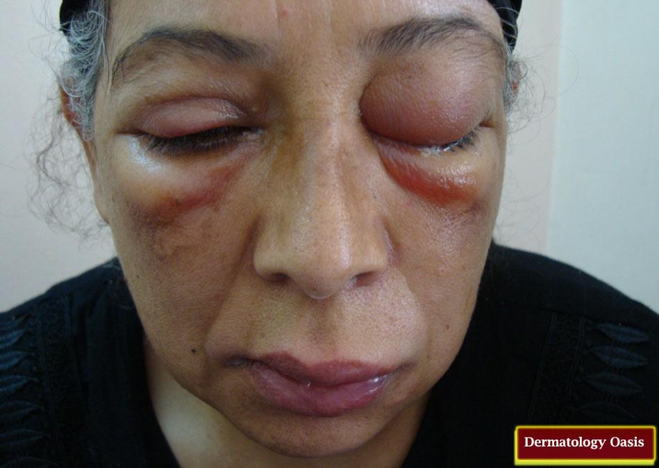 Angioedema Dermatology Oasis