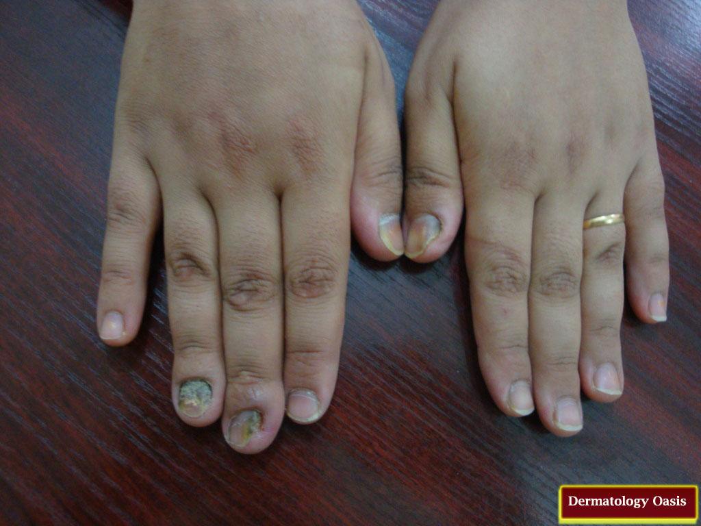 Onychomycosis (Tinea Unguium) | Dermatology Oasis